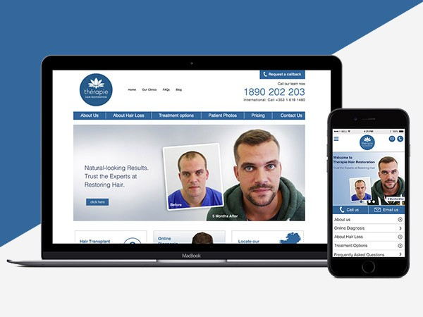 Hair Restoration Website Design